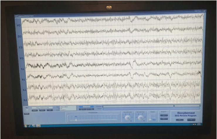 Brainwave reading