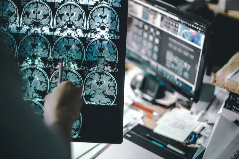 Define Cerebral: Cerebral Scan